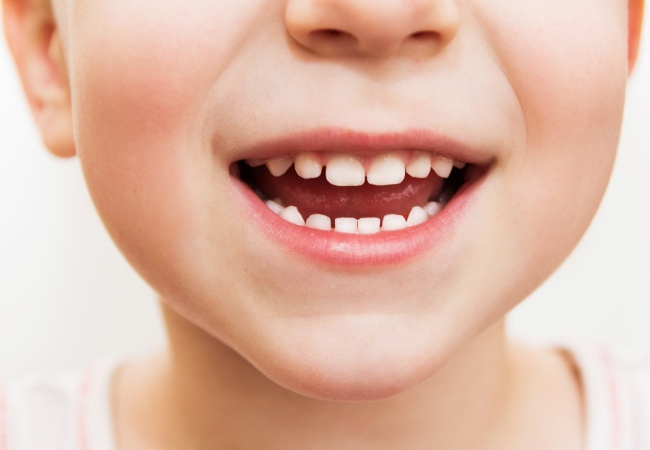 Fluoride varnish for kids