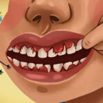 Cartoon of a person with bleeding gums indicating gum disease.
